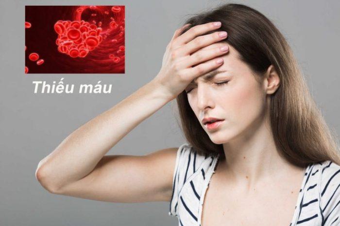 Bệnh thiếu máu ăn gì là câu hỏi băn khoăn của rất nhiều người.
