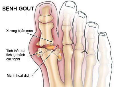 bệnh gout là gì điều trị bệnh gout như nào