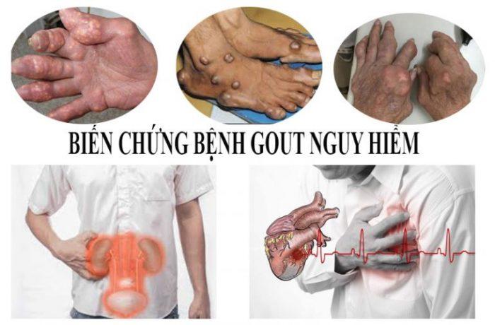 Biến chứng bệnh gout nguy hiểm dẫn đến suy thận, đột quỵ, xuất hiện hạt tophi.