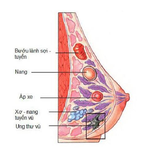 Cẩn trọng với các dấu hiệu của ung thư vú
