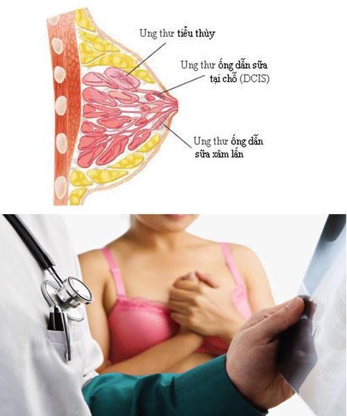 Ung thư vú đứng đầu danh sách bệnh ung thư thường gặp ở phụ nữ.