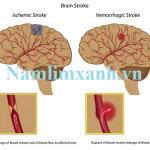 Nấm lim xanh hỗ trợ phòng ngừa tai biến mạch máu não