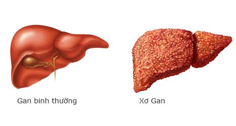 Xơ gan dẫn đến những biến chứng bệnh xơ gan nguy hiểm
