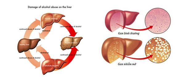 Nấm lim xanh chữa bệnh gan nhiễm mỡ: Khỏi bệnh nhờ nấm lim Lào