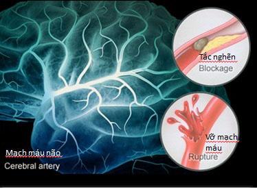 Nấm lim xanh ngăn ngừa và hỗ trợ phục hồi tai biến mạch máu não