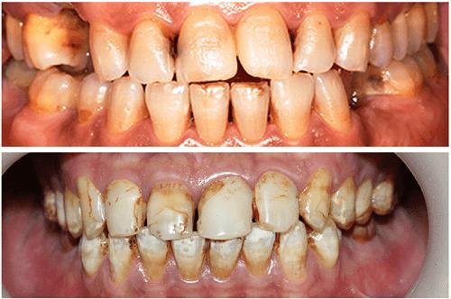Răng vàng ố và dễ rụng là tác hại mà thuốc lá gây nên