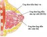 Ngăn ngừa ung thư vú và ung thư tuyến tiền liệt