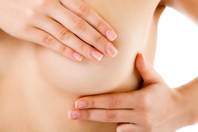 Những quan niệm sai lầm về bệnh ung thư vú