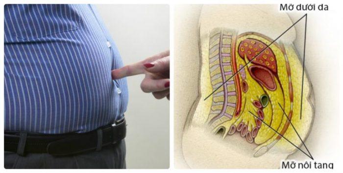 Muốn béo bụng cần phải giảm mỡ bụng dưới da và nội tạng.