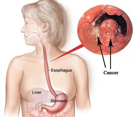 Thông tin về ung thư thực quản hữu ích có thể cứu sống bạn