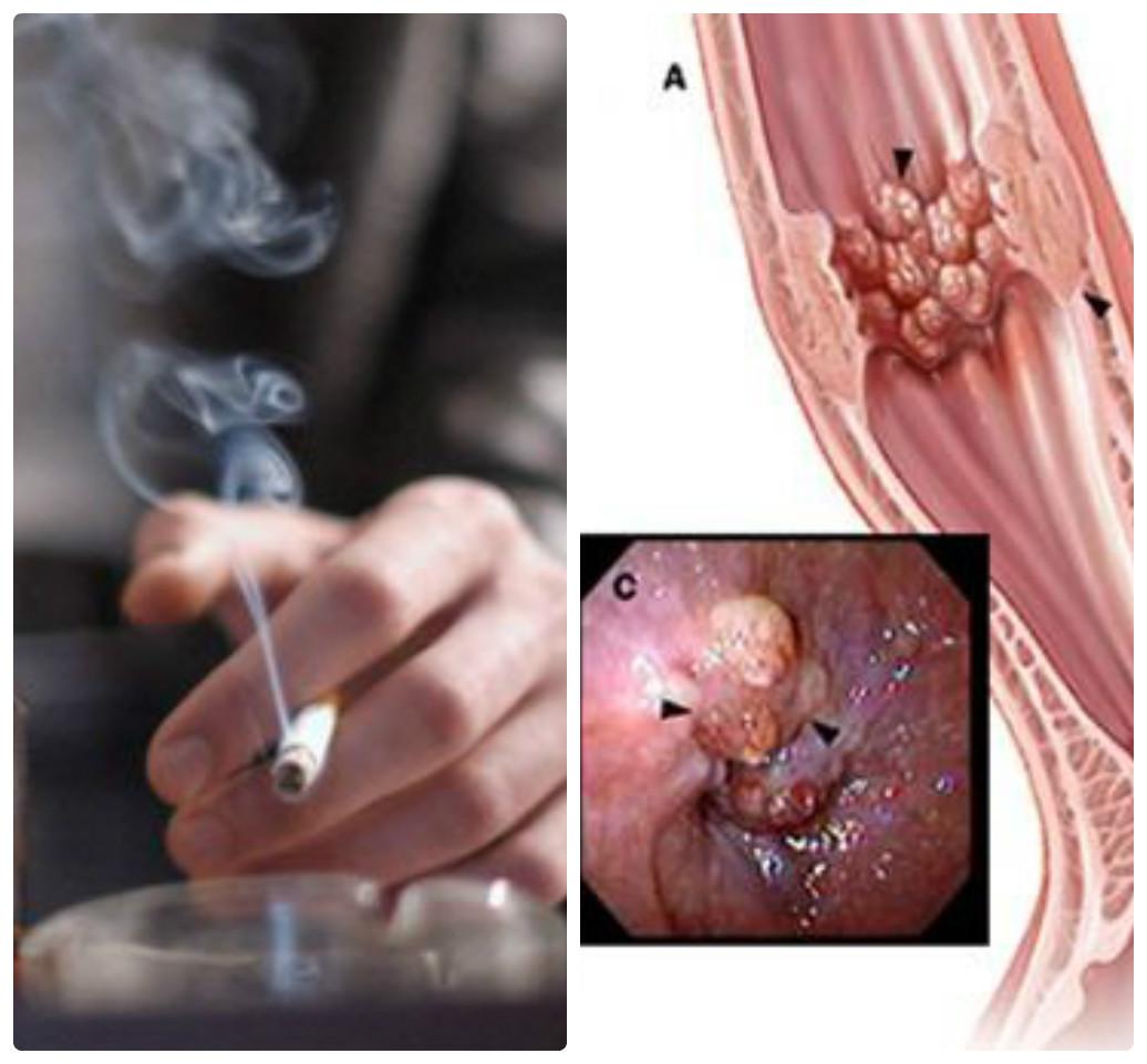 Hút thuốc lá có thể dẫn đến ung thư thực quản