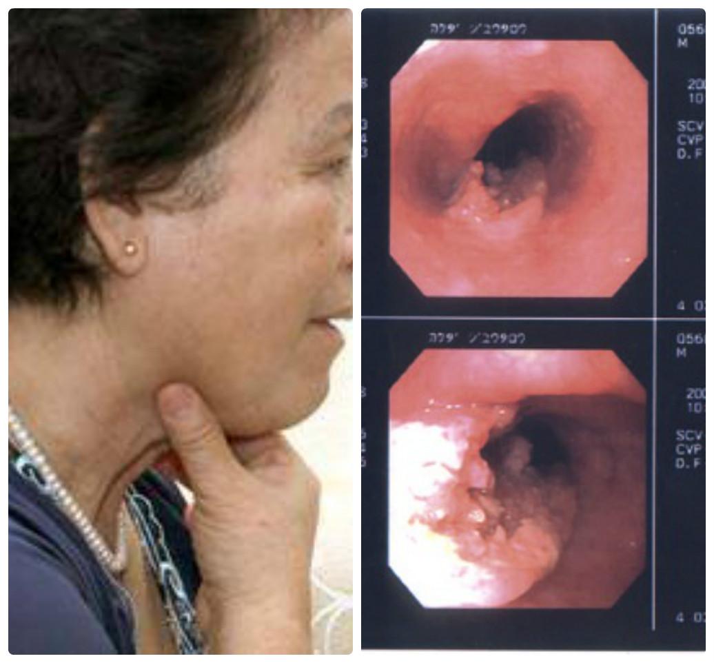 Khó nuốt là dấu hiệu của bệnh ung thư thực quản