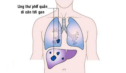 Ung thư phế quản giai đoạn cuối di căn đến gan.