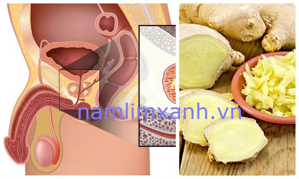 Gừng là thực phẩm ngăn ngừa ung thư tuyến tiền liệt hiệu quả (mô tả ảnh)