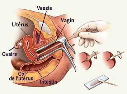 Điều trị ung thư cổ tử cung- Ảnh minh họa