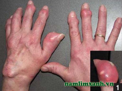 Bệnh gout khiến các khớp biến dạng