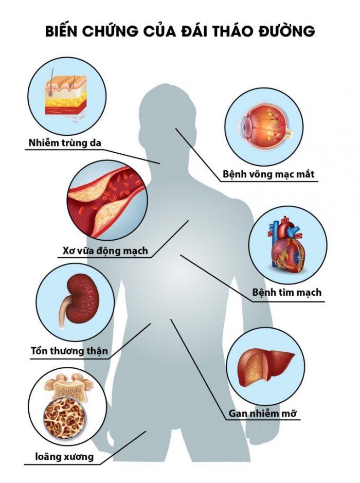 Biến chứng của bệnh đái tháo đường