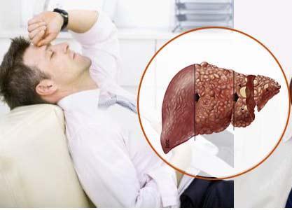 Căng thẳng mệt mỏi trong công việc cũng ảnh hưởng đến chức năng gan