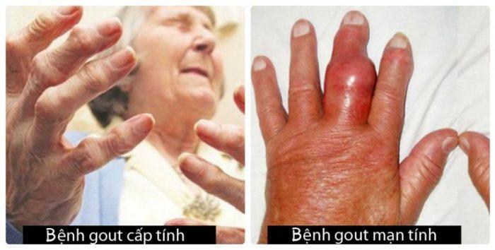 Nhận biết bệnh gout khác nhau qua từng giai đoạn