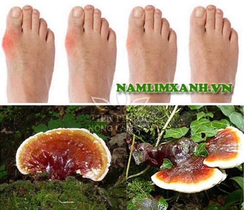 Gout làm cho người bệnh bị đau nhức và biến dạng các khớp