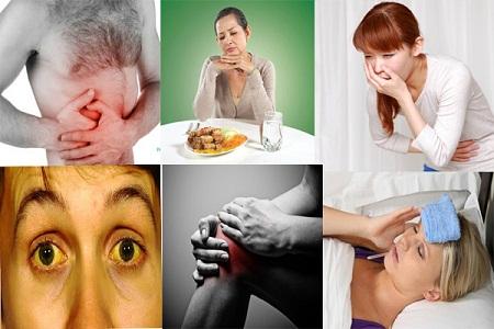 Nhận biết bệnh viêm gan qua các biểu hiện trên cơ thể