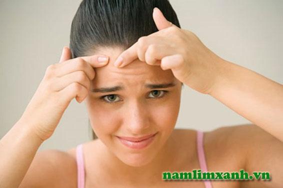 Căng thẳng và strees là nguyên nhân gây mụn