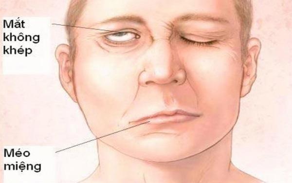 Mắt không nhép và méo miệng là biểu hiện của tai biến mạch máu não