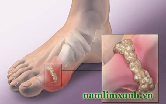 chữa bệnh gout bằng nấm lim xanh
