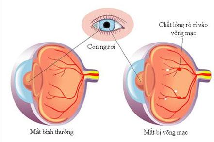 Những biến chứng của đái tháo đường có thể dẫn tới nguy cơ mù lòa
