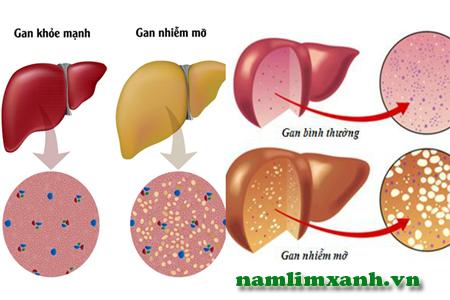 Gan nhiễm mỡ ảnh hưởng tới sức khỏe người bệnh