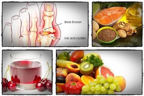 Người bị bệnh gút nên ăn gì và uống gì?