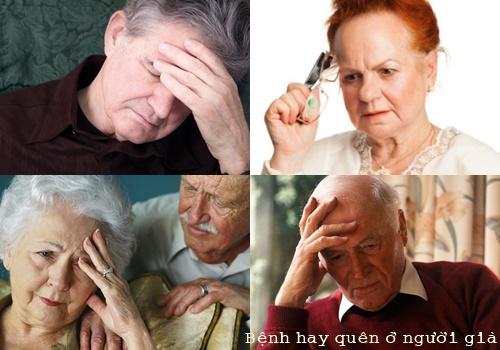 Bệnh hay quên ở người già mỗi năm lại có thêm 7,7 triệu người mắc bệnh