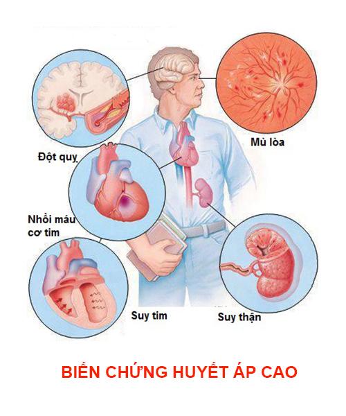 Biến chứng huyết áp cao nguy hiểm