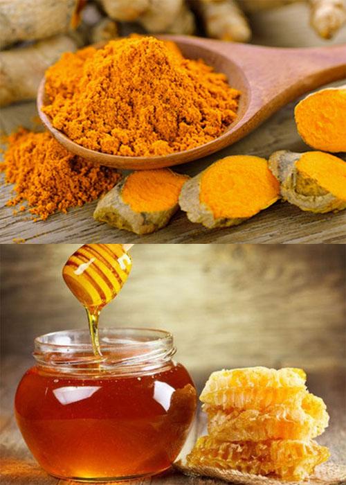 Chữa đau dạ dày bằng nghệ và mật ong mang lại kết quả rất tốt.