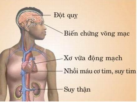 Những biến chứng của bệnh cao huyết áp