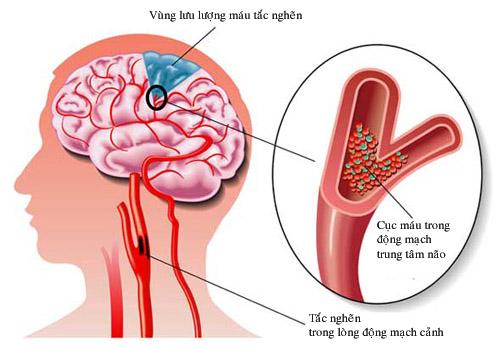 Phòng ngừa rối loạn tuần hoàn não nhờ nấm lim xanh