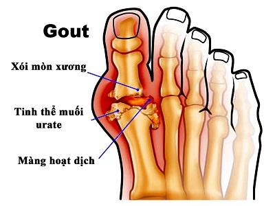 Những biến chứng khi điều trị bệnh gout không đúng cách