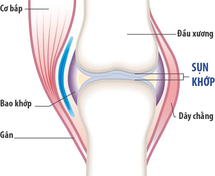 Nấm lim xanh giải pháp điều trị viêm xương khớp hiệu quả
