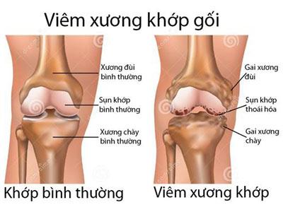 Viêm xương khớp thường xảy ra ở khớp gối, tay, cột sống thắt lưng