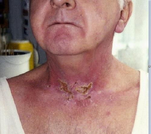 Tác dụng phụ của xạ trị ung thư bệnh nhân có thể gặp phải như mệt mỏi, viêm họng, tổn thương da...