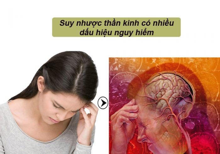 Dấu hiệu bệnh suy nhược thần kinh ảnh hưởng đến đời sống của bệnh nhân.