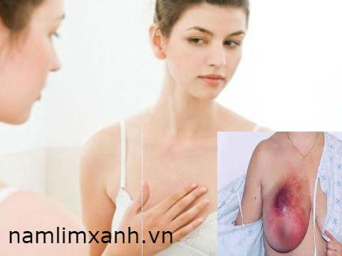 Phụ nữ ngực nhỏ vẫn có nguy cơ mắc bệnh ung thư vú