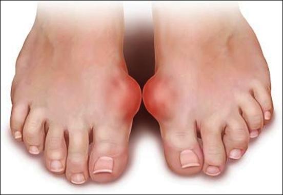 cách dùng nấm lim xanh chữa bệnh gout