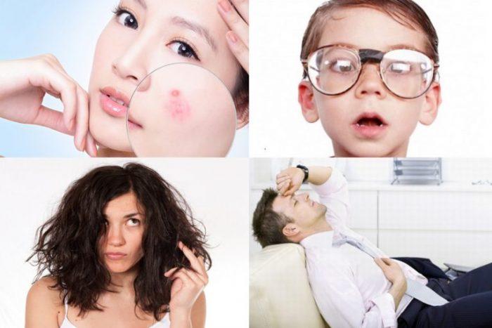 Dấu hiệu thiếu vitamin thường dễ nhìn thấy và cảm nhận được