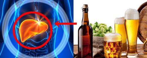 Tác hại của rượu bia tới gan gây các bệnh lý nguy hiểm như: gan nhiễm mỡ, viêm gan...