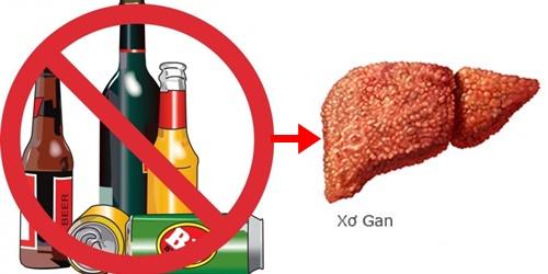 Xơ gan là căn bệnh nguy hiểm có nguyên nhân từ tác hại của rượu bia tới gan