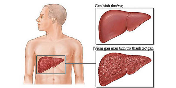 Triệu chứng của xơ gan giai đoạn còn bù