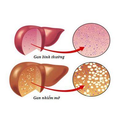 Tác dụng của nấm lim xanh trong điều trị gan nhiễm mỡ