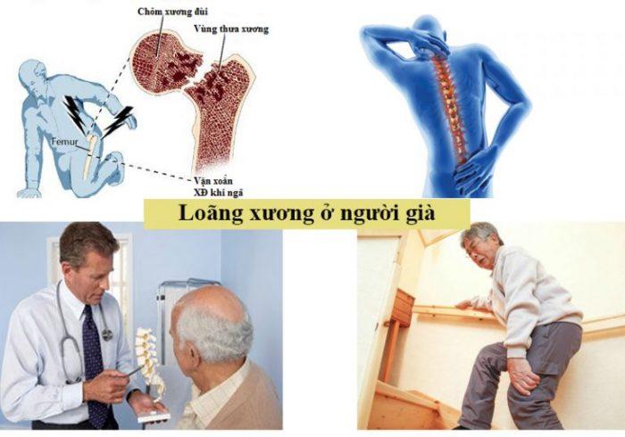 Người cao tuổi thường mắc bệnh loãng xương.