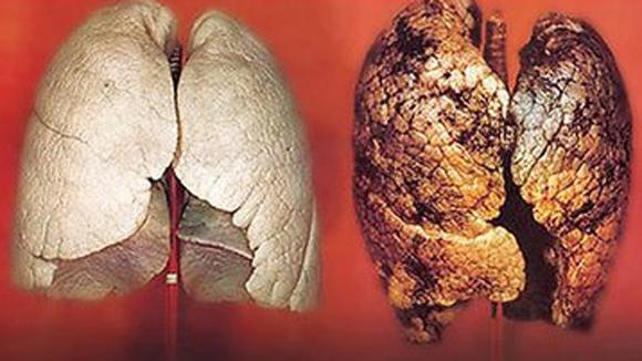 Nấm lim xanh Quảng Nam điều trị bệnh ung thư phổi